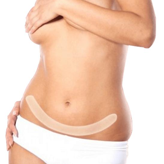 Lamina-de-Gel-Pos-Cirurgica-Abdominal-SG-210-Ortho-Pauher